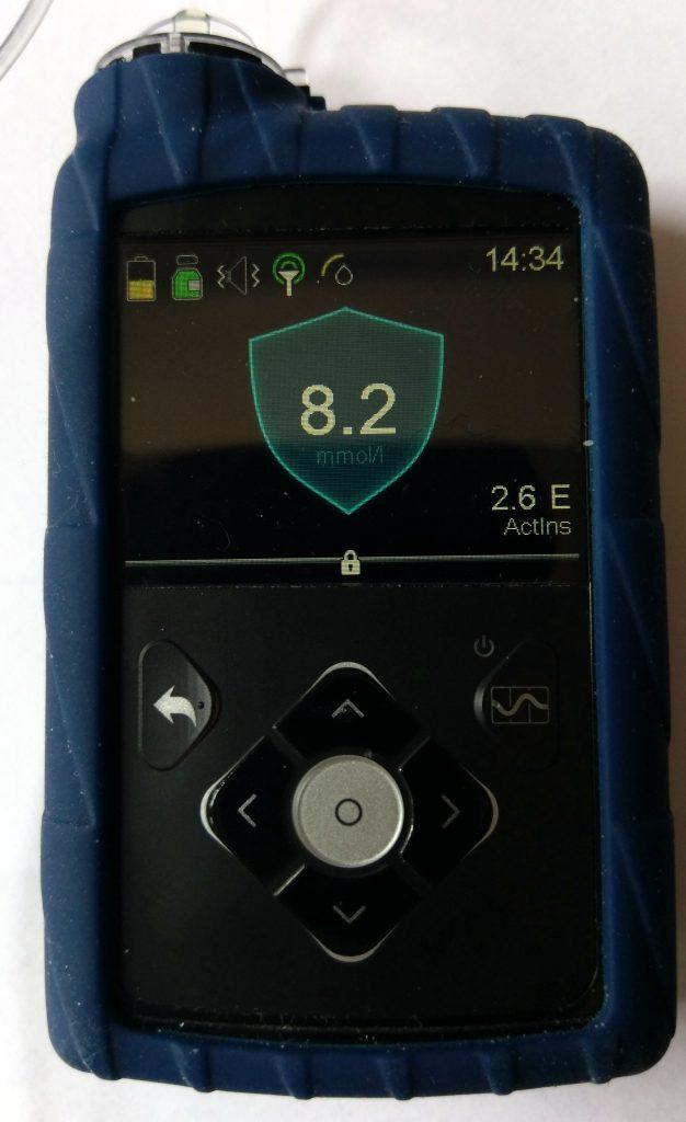 medtronic 670g insulinepomp